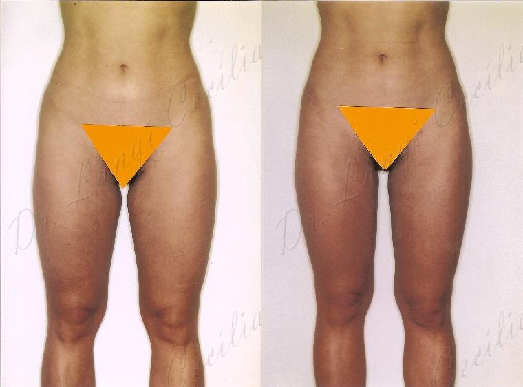 Izzadás és fogyás - Fogyókúra | Femina Hogyan lehet elveszíteni a belső zsírt